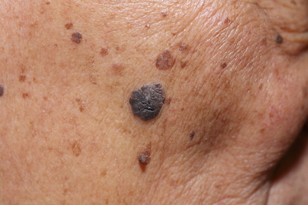 lesions: close up of suspicious mole on skin