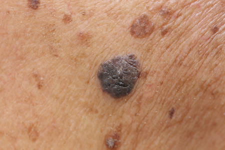 the lesions: close up of suspicious mole on skin