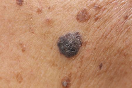 close up van verdachte moedervlek op de huid
