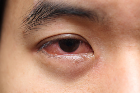 bloodshot: background of red sore allergy eye