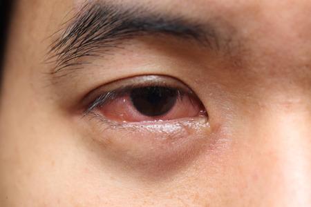 sfondo di colore rosso degli occhi allergia dolente