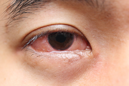 sore eye: background of red sore allergy eye