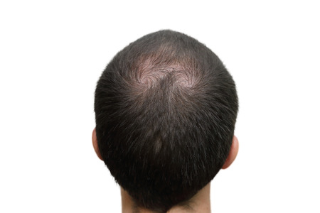 head and  back: closeup background of bald head Stock Photo