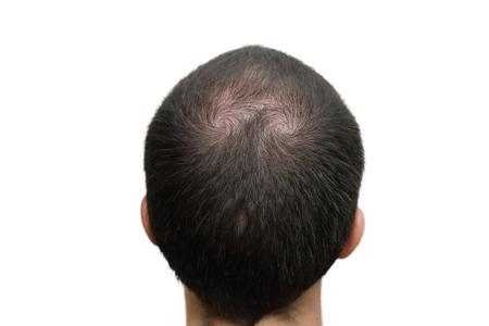 cabeza: Fondo del primer de la cabeza calva Foto de archivo