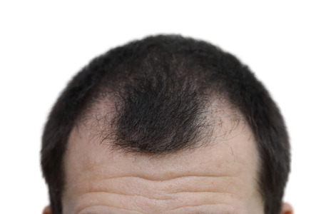 isolated male with hair loss symptoms  on white background