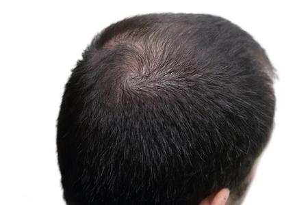 bald head: closeup background of bald head Stock Photo