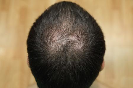 closeup background of bald head 写真素材