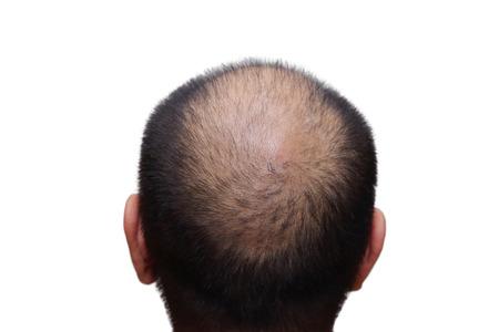 bald: aislado varón con síntomas de pérdida de cabello en el fondo blanco