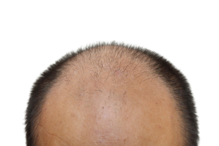 isolated male with hair loss symptoms on white background 스톡 콘텐츠