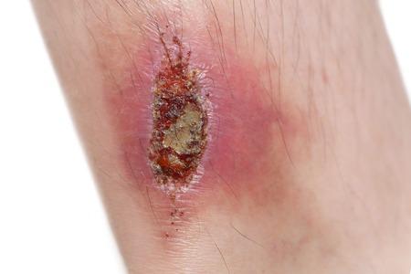 geïsoleerde gewond been in een witte achtergrond