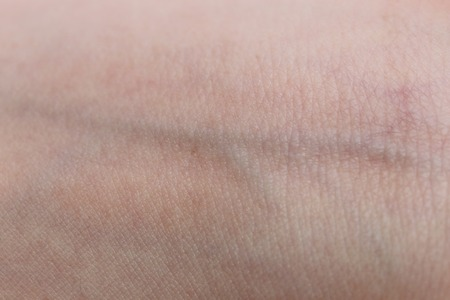 close-up on veins in the wrist