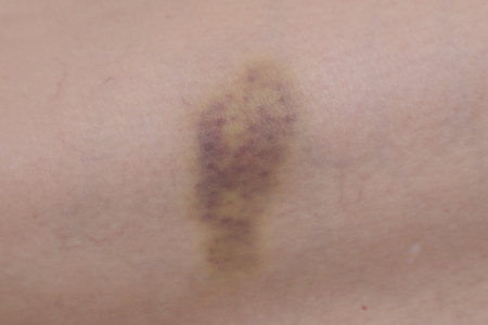 contusion: close up on a bruise on the skin