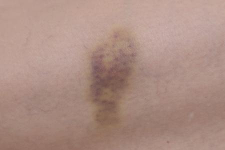 vasos sanguineos: close up sobre un moret�n en la piel Foto de archivo