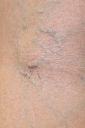 ulceration: close-up on varicose veins on the skin