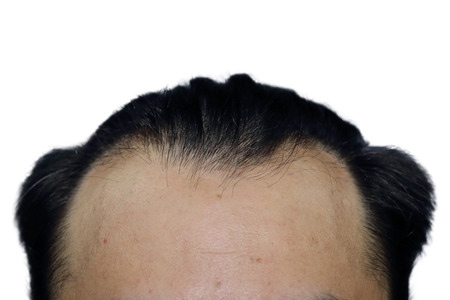 receded: close-up on a man with hair loss Stock Photo