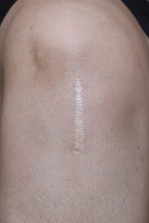 scar: close-up on tendon surgery scar