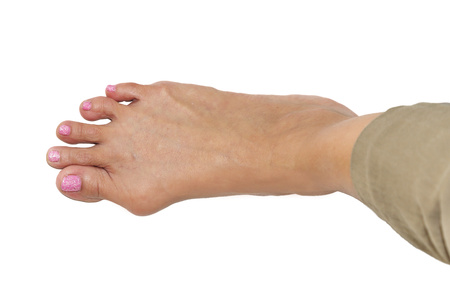 orthopaedist: isolated background of  foot deformity called bunion deformity or hallux valgus