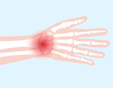 ulna: hand bone joint injured