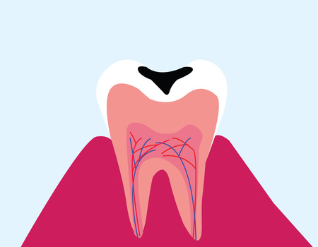 vector background of tooth decay Illustration