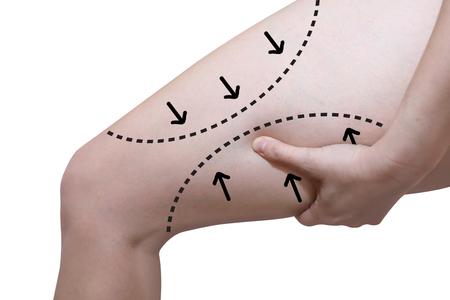 geïsoleerde vrouw grijpen haar dij met de pijl lijn in liposuctie cellulitis verwijdering concept Stockfoto