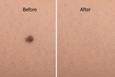 레이저 치료 후 여자 피부에 두더지의 이미지 스톡 콘텐츠