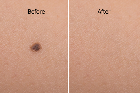 image of mole on woman skin before after laser treatment