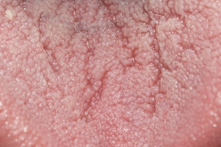 Close Up On Taste Bud On Tongue Stock Photo, Picture And Royalty ...