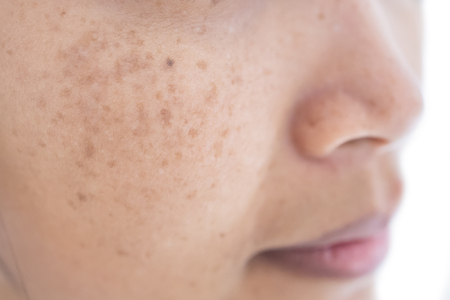 freckle on asian woman face and skin Foto de archivo