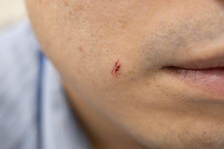 kleine Wunde im Gesicht eines Mannes von Rasiermesser
