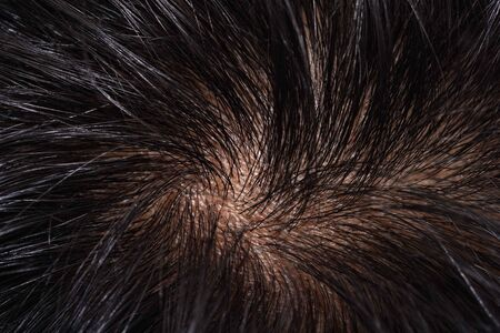 Close-up on Asian Woman Black Hair and Scalp