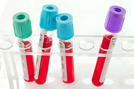 anemia: Tubes blood sample in rack Stock Photo