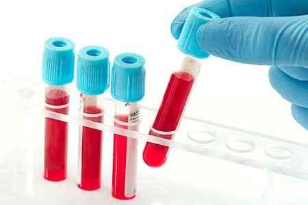 Blutproben für die Analyse im Labor Standard-Bild - 25987625