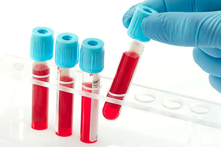 red tube: Las muestras de sangre para el análisis en el laboratorio