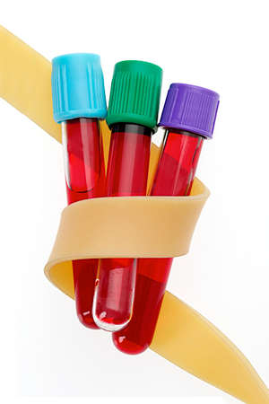 anemia: Blood Collection Tubes tubes enclave in rubber band