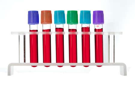 triglycerides: Muestra de sangre en tubos de bastidor