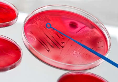 inoculation: Inoculation Microbiology In Petri Dish