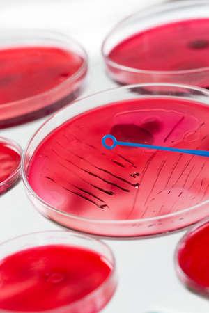 inoculation: INOCULATION MICROBIOLOGY IN PETRI DISH Stock Photo