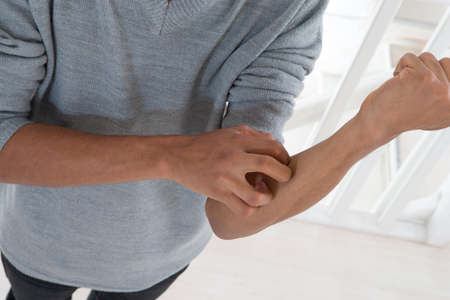 joung mulatto man with itching arm Stock Photo
