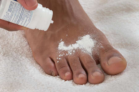 foot fungus: MALE FOOT MYCOSIS TREATMENT Stock Photo