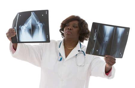 radiography: Female doctor examinig radiography