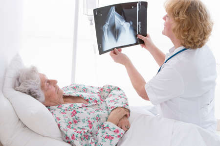 fmale: Fmale doctor showing and explaining x-ray to elderly patient