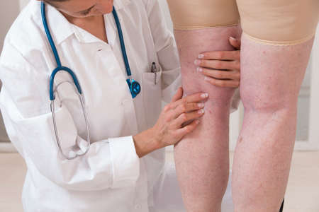 varicose veins: doctor showing varicose veins from an elderly woman