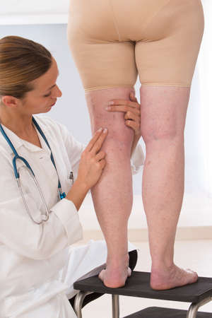spider: doctor showing varicose veins from an elderly woman
