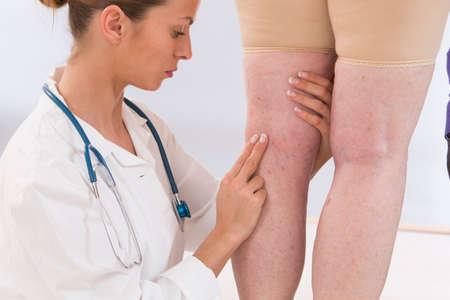 高齢者の女性から静脈瘤を示す医師します。