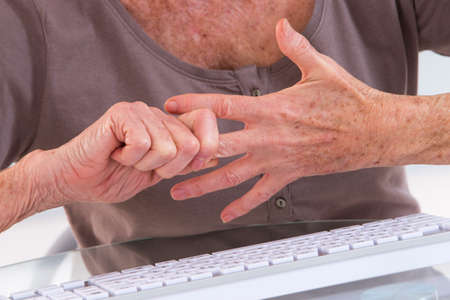 knuckles: Arthritis pain in the joints of the knuckles.