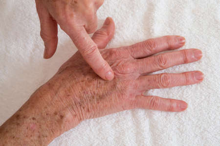skin disease: old stain on the skin- Skin disease on hands