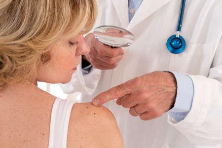 dermatologist focus on senior woman beauty spot Stock Photo