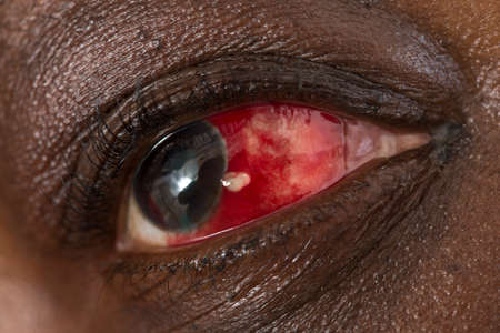 macula: red eye with tears - close-up Stock Photo