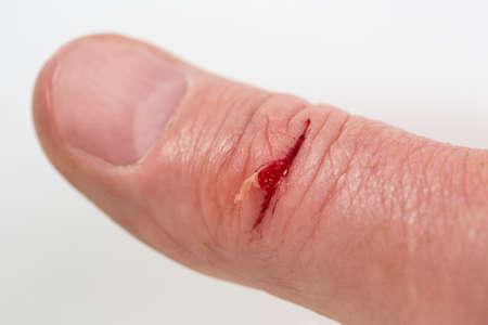 herida: Herida con sangre en el dedo masculino Foto de archivo