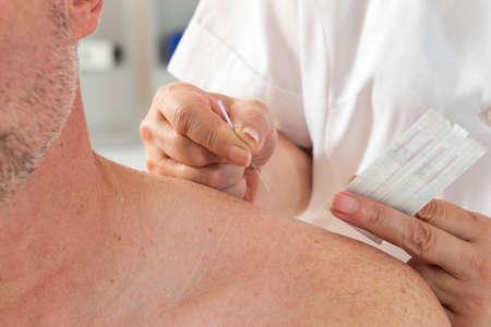 medical cure: Senir Man Undergoing Acupuncture Treatment Stock Photo